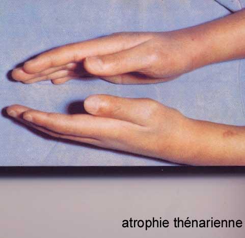 granulome annulaire et maladie de lyme
