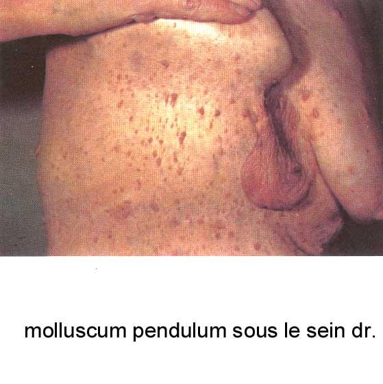 molluscum pendulum dangereux