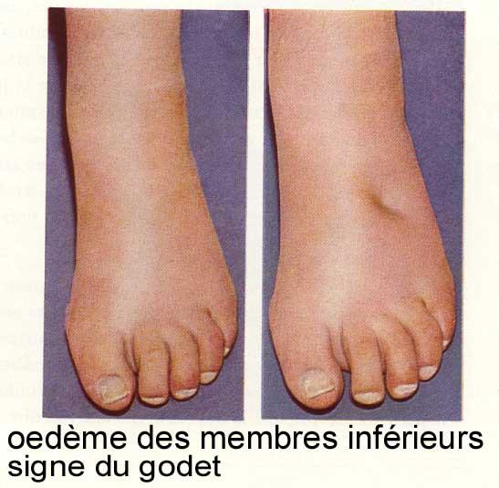 oedeme membres inférieurs insuffisance cardiaque