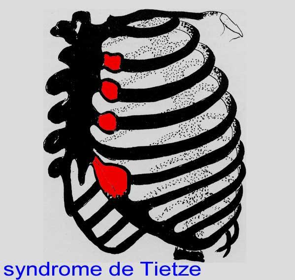 syndrome de tietze guerison